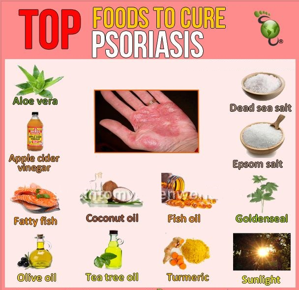 Home Remedies To Help Psoriasis