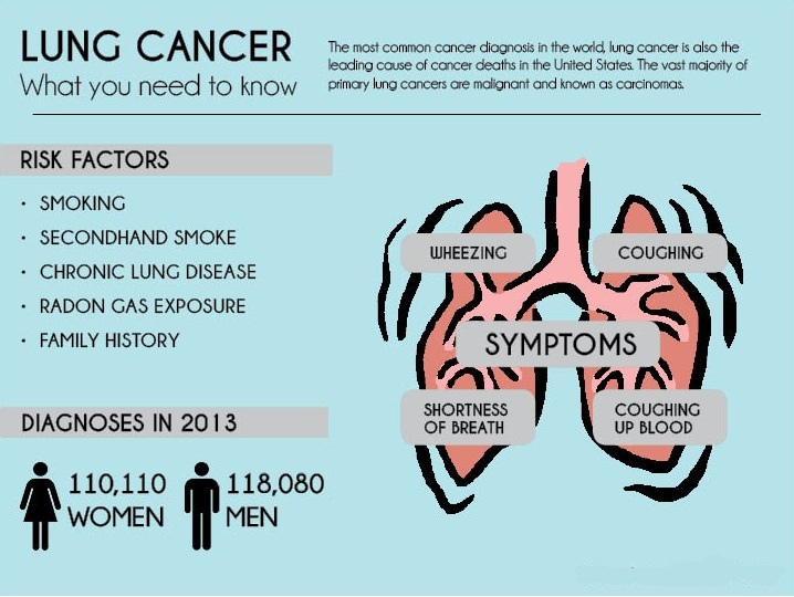 the causes major types and treatment of lung cancer Understanding the causes, symptoms, and treatment of cancer share pin email search the site go more in cancer symptoms causes & risk factors diagnosis treatment it is responsible for not only lung cancer but many other types of cancers, as well.