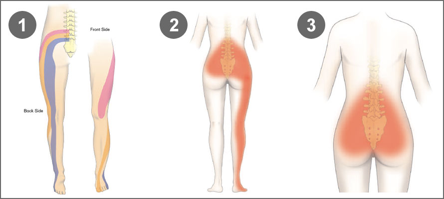 How to get rid of back pain that is related to constipation