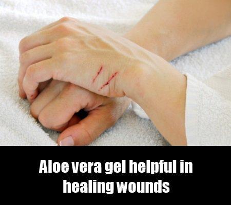 Aloe Vera for Psoriasis