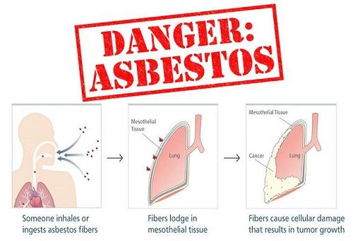 asbestosis
