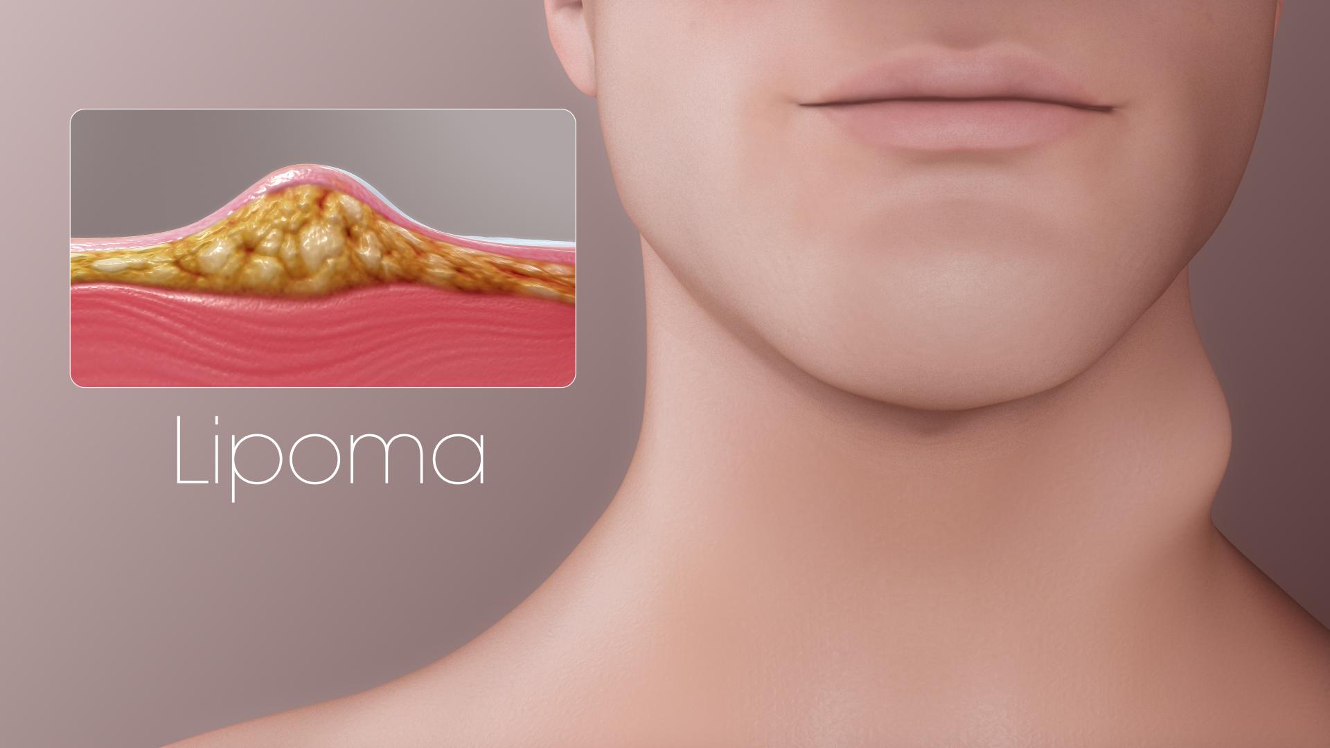 get rid of lipoma
