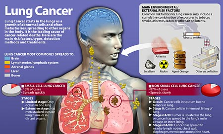 Lung Cancer in Children | Causes, Types, Symptoms and ...