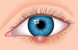 eye infection in toddlers